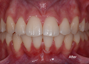>Orthodontics After – Case 2