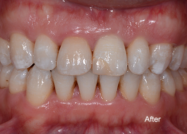 >Orthodontics After – Case 3