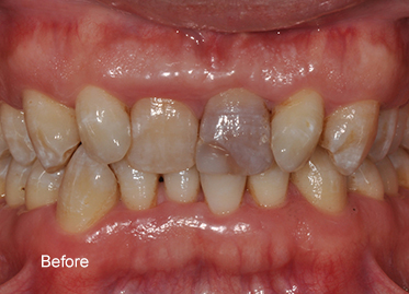 >Orthodontics Before – Case 3