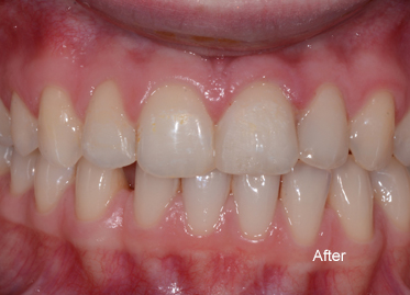 >Orthodontics After – Case 1