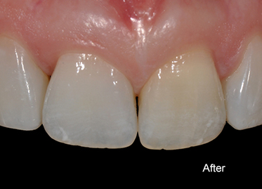 Peg Lateral Case After