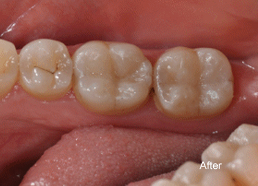 Tooth Coloured Fillings After – Case 2
