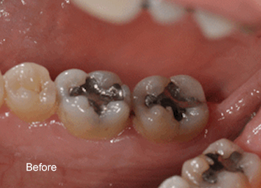 Tooth Coloured Fillings before – Case 2