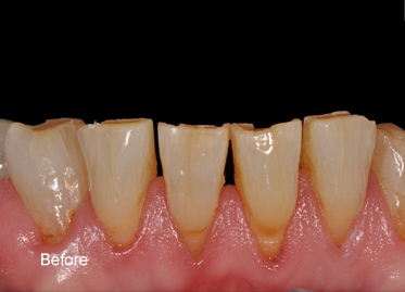 Toothwear – Case Before