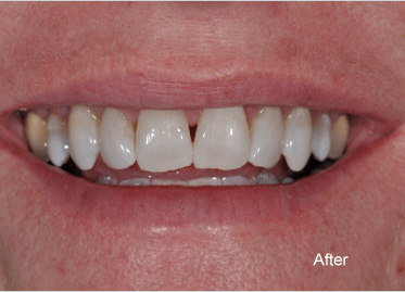 Teeth Whitening – Case 1 After
