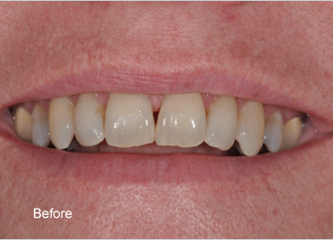 Teeth Whitening – Case 1 Before