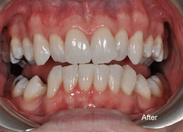 Teeth Whitening – Case 2 After