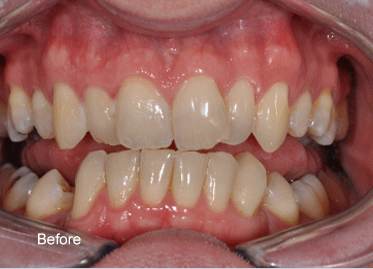 Teeth Whitening – Case 2 Before