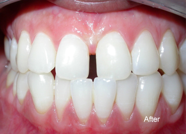 Teeth Whitening – Case 3 After