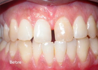 Teeth Whitening – Case 3 Before