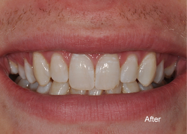 Teeth Whitening – Case 4 After