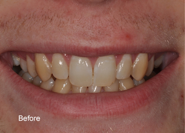 Teeth Whitening – Case 4 Before