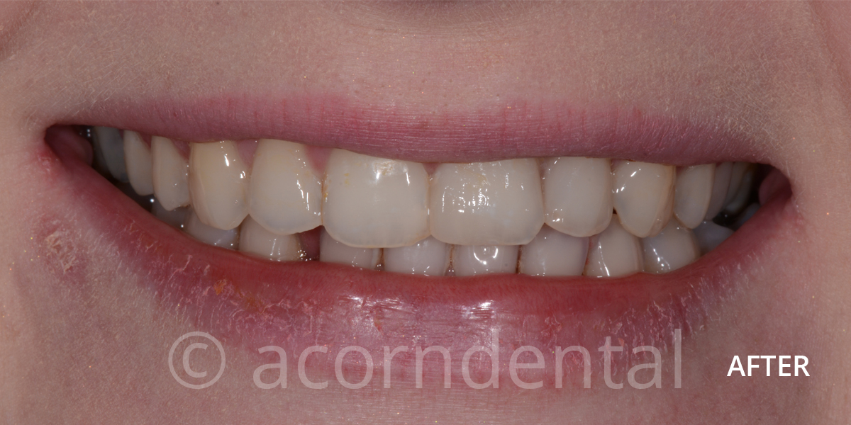 Invisalign Case 1 After